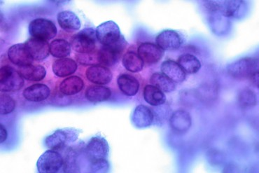 papillary thyroid carcinoma